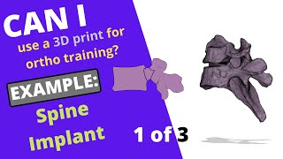 Can I use a 3D print for orthopedic training in a pinch? Example 2: Step 1 of 3