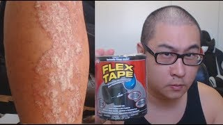 Is FLEX TAPE strong enough for Psoriasis Flakes?