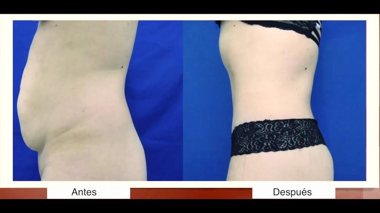 Sobrante peso perder reducir la piel como despues de
