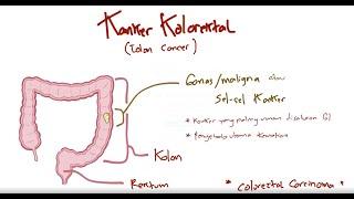 Colonoscopy:Rectum - LST-G Tumor - Piecemeal EMR.