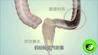 腸道物理治療操作說明