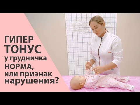 Гипертонус у грудничка до 4 месяцев - норма, или нарушение? Галина Игнатьева
