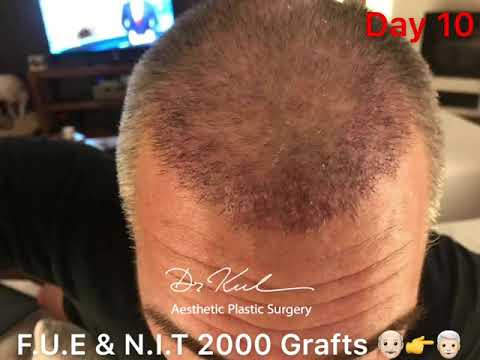FUE & Stick And Place 2000 Grafts 👴🏻👉👨🏻🦳