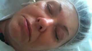 Mesotherapy Anti Ageing Faces