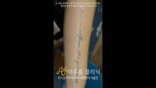 레터링 타투제거 회차별 시술영상 - 타기관시술후 내원 …