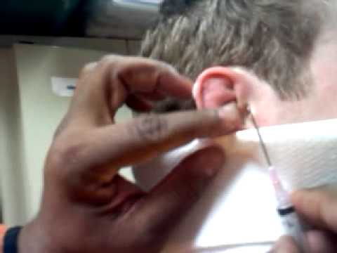 how to get rid of cauliflower ear without draining
