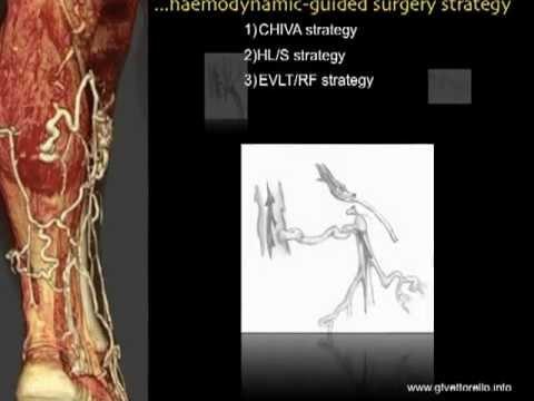 Presentazione su diagnosi emodinamcica del sistema venoso