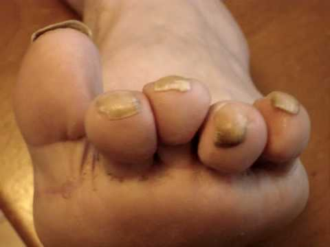 Filthy Feet Disgusting Curled Ingrown Yellow Toenails Toes You