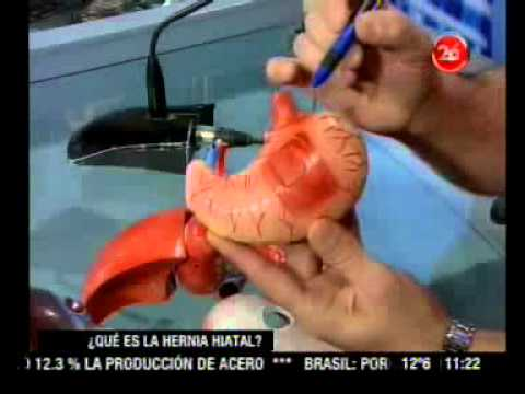 próstata agrandada y hernia hiatal