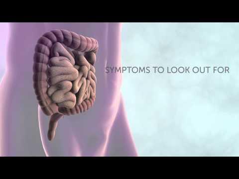 Symptoms of bowel cancer