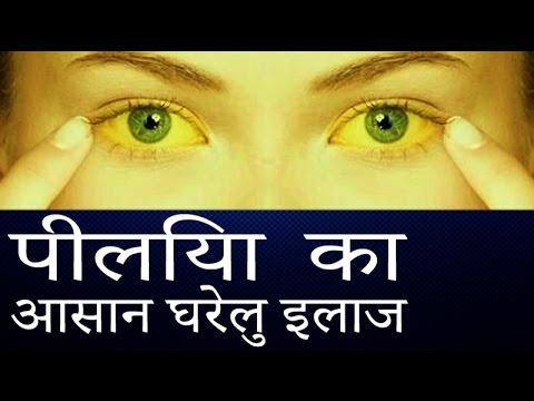पीलिया का पक्का इलाज │ Jaundice Natural Treatment │Piliya ka Gharelu ilaj  in Hindi │ Imam Dasta