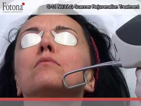 Skin Tightening - Skin Alert Cairns Cancer Clinic