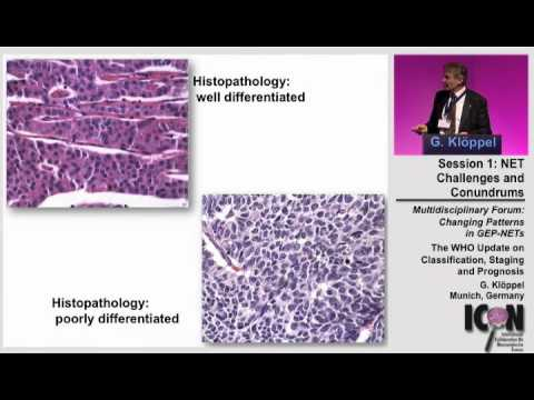 ICON Meeting 2011: WHO update on Classification,Staging and Prognosis - Dr.Kloppel
