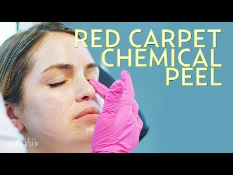 A Red Carpet Chemical Peel to Get Glowing Skin! | The SASS with Susan and Sharzad