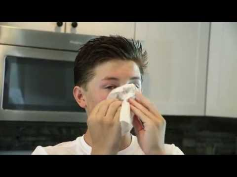 What Causes Nosebleeds