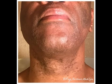 Skincare Advice for Black Men: How to Know if U Have Acne vs. Ingrowns