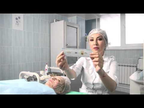 Армирование лица бразильскими нитями в Институте Косметологии и Дерматологии