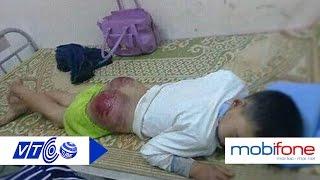 Bố đẻ đánh con trai nhập viện ở Thái Nguyên | VTC
