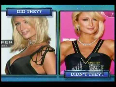 Does Paris Hilton Have Breast Implants?