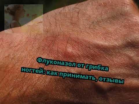 Флуконазол от грибка ногтей: как принимать, отзывы