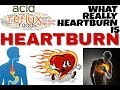Heartburn || what really it is and how it happens.