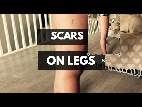Rita how can i get rid of scars on legs fast youtube rita how can i get rid of scars on legs fast ccuart Gallery