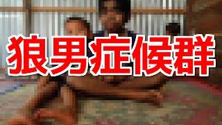 【衝撃】リアル狼男!?「神」と崇められる狼男症候群の少年 狼男症候群 検索動画 3