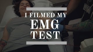 ELECTROMYOGRAPHY FROM A PATIENT'S PERSPECTIVE 💡 | Vlog (06.01.18)