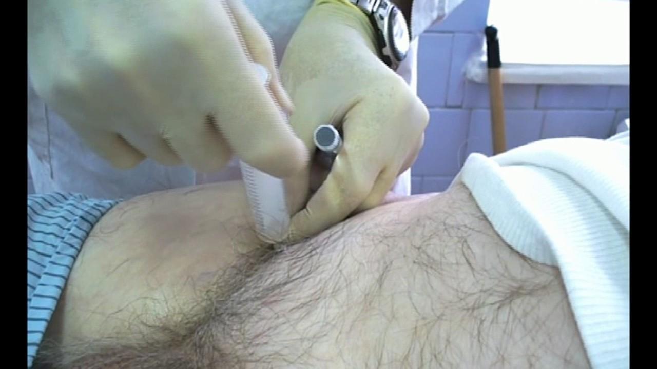 Пункция тазобедренного сустава техника сложные внутрисуставные переломы коленного сустава