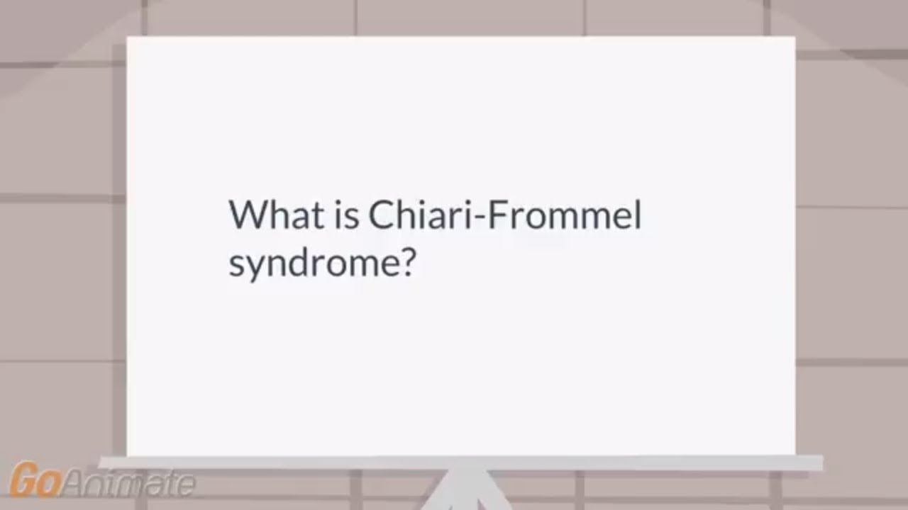 SYNDROME CHIARI FROMMEL EBOOK