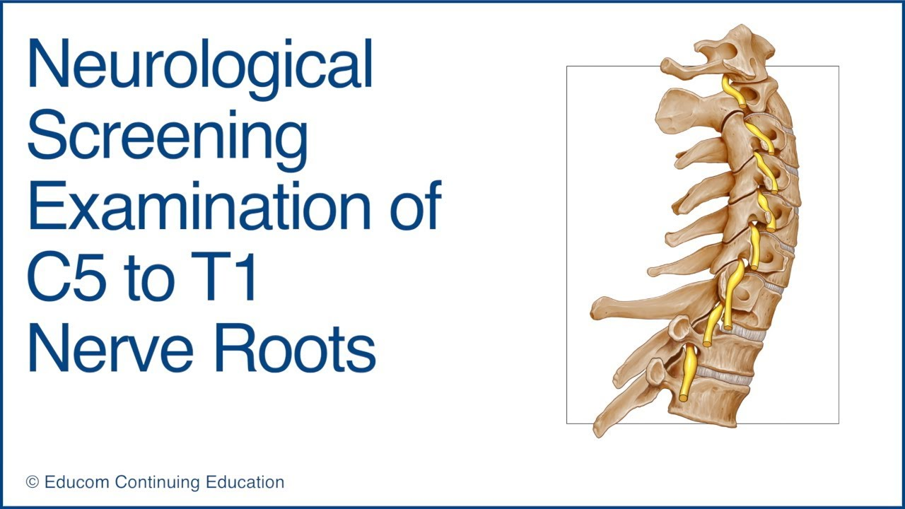 neurological screening examination of c5 to t1 nerve roots youtube
