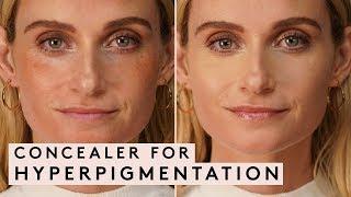 Concealer for Hyperpigmentation