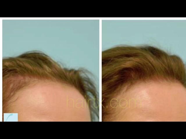 Low-Level Laser Hair Restoration Testimonial in Dallas, Texas
