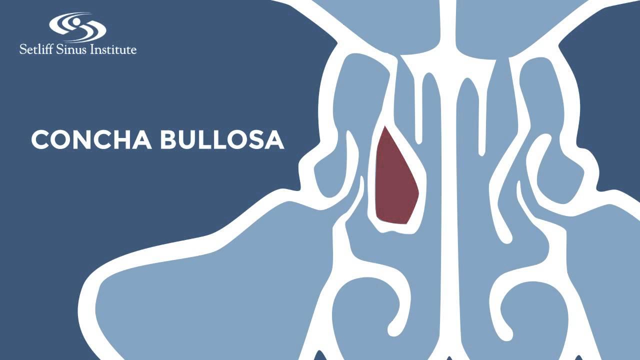 Sugical Repair Of Concha Bullosa