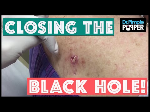 "From ""Big Back Blackheads"": Closing The Black Hole"