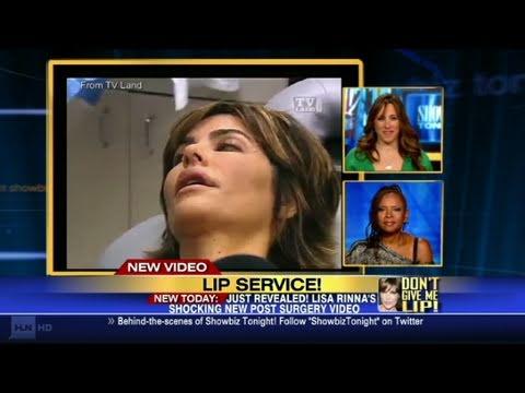 CNN: Lisa Rinna's lip trouble