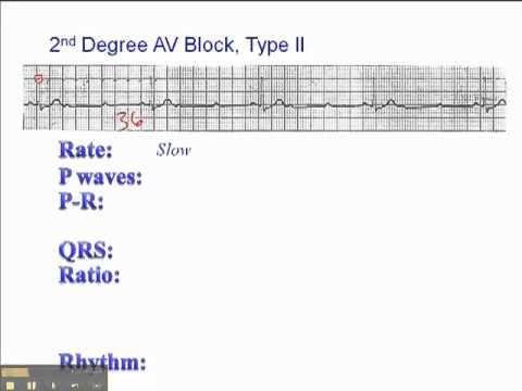 ECG: 2nd Degree AV Block Type 2