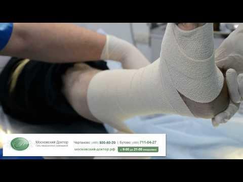 Консервативное лечение трофической язвы  Перевязка и наложение компрессионной повязки