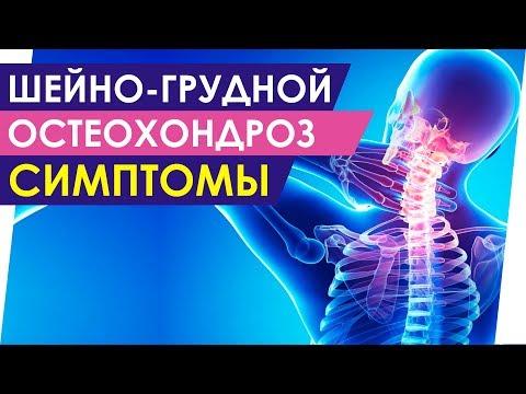 Шейно грудной остеохондроз признаки симптомы