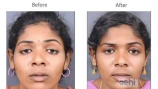 Ptosis (droopy eyelid) -treatment, surgery (blepharoplasty)- Dr Akshay Nair, AEHI, Navi Mumbai