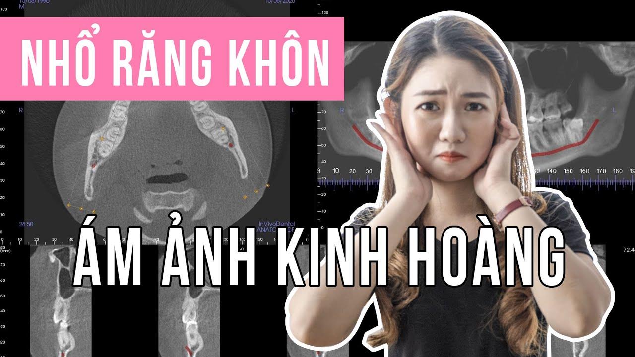 """Vlog 39: NHỔ RĂNG KHÔN   Chia sẻ kinh nghiệm nhổ răng khôn """"KINH HOÀNG""""   MC Hà Thu"""