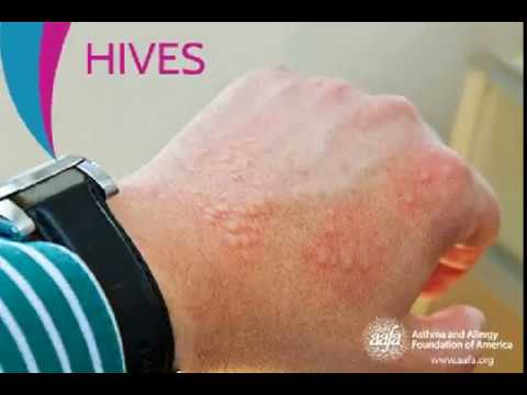 Urticaria 2 hives cure by homeopathy medicine