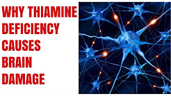 Alcoholic Brain 4 Thiamine and Niacin deficiency