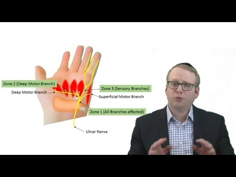 #ulnar #tunnel #syndrome Causes And Treatment| Pinky Finger