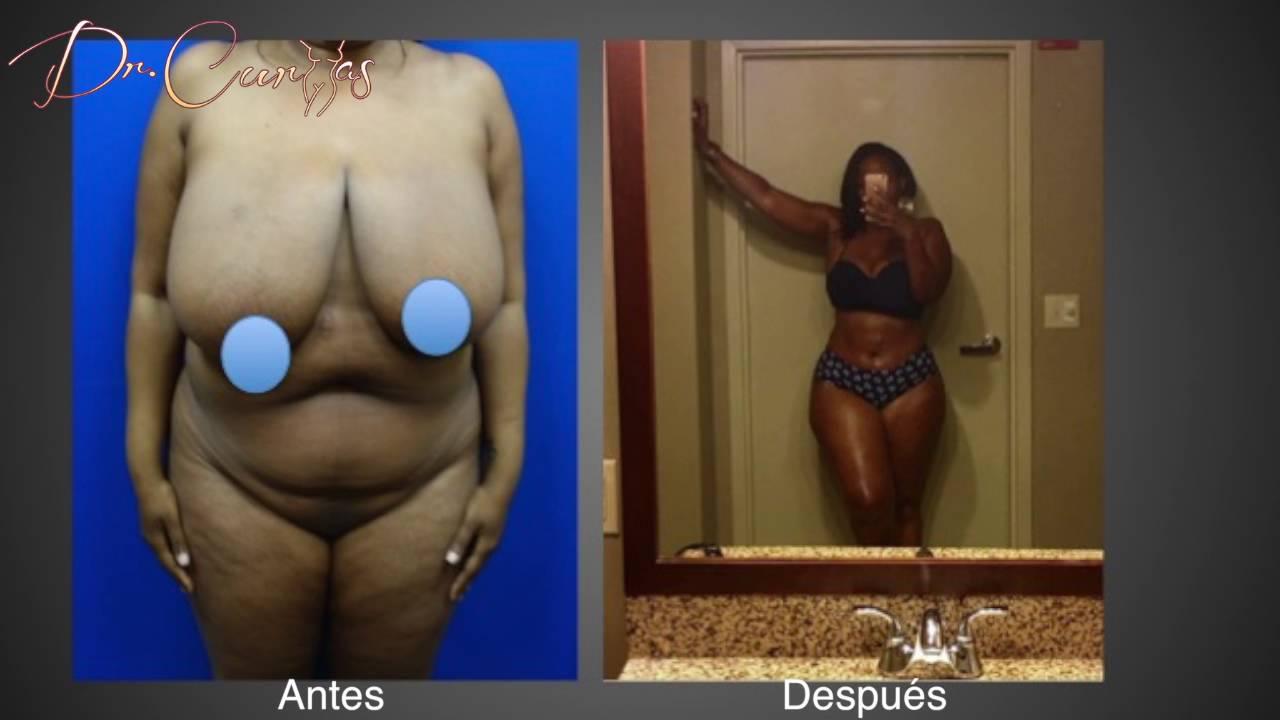 Curvas naturales potenciadores de senos