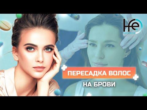Пересадка волос на брови методом HFE