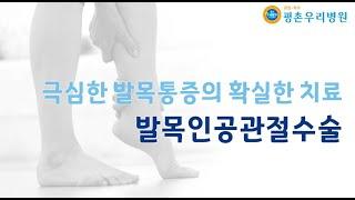 극심한 발목통증의 확실한 치료 발목인공관절수술 [안양정…
