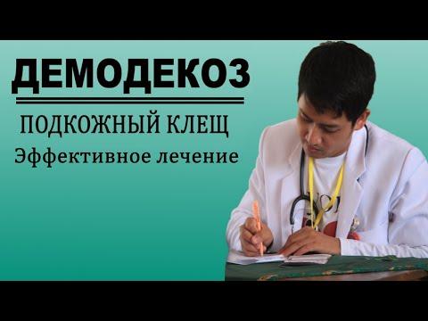 Как избавиться от подкожного клеща Эффективное лечение демодекоза
