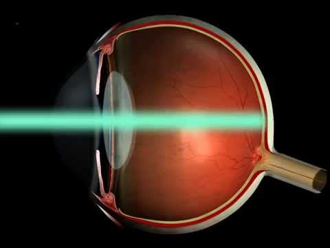Аргонлазеркоагуляция при близорукости