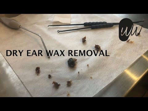510 - Dry Ear Wax Removal
